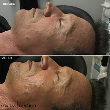 LuxTan before and after of mans face