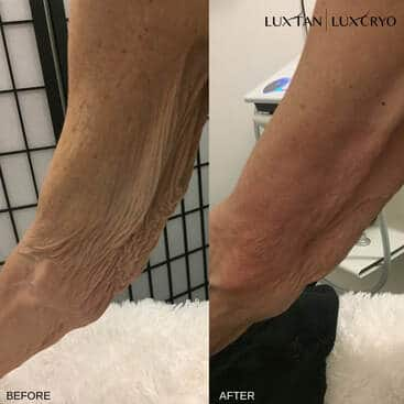 T-Shock Therapy before and after of underarm skin sag