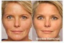 Red light facial wrinkle removal before and after