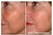 Red light facial skin rejuvenation before and after