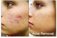 Red light therapy acre removal before and after