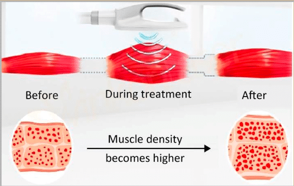Fitwave muscle density before and after treatment